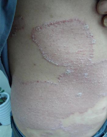 银屑病有什么临床症状